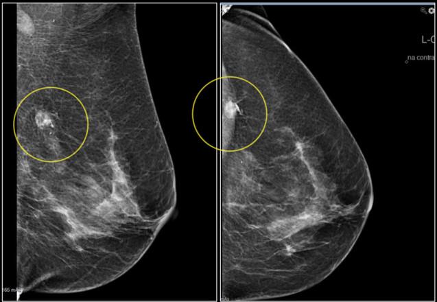 Mamografia no diagnóstico do Câncer de Mama