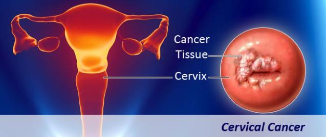 Bevacizumab:  Nova droga para o câncer de colo útero