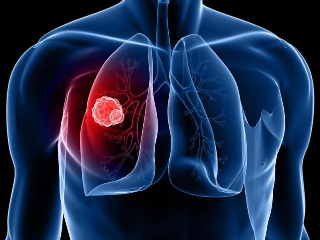 Diagnóstico precoce para Câncer de pulmão: é possível?