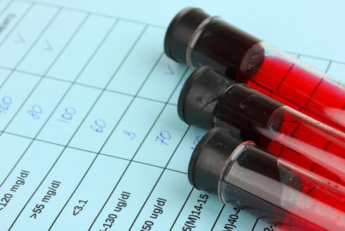 Diagnóstico precoce para o câncer de ovário: uma esperança