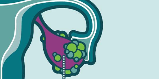 Be-a-bá do câncer de ovário