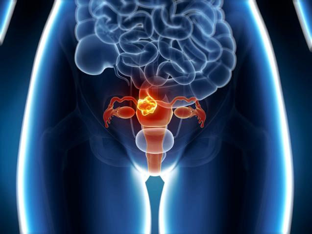 Câncer de endométrio: novo teste diagnóstico