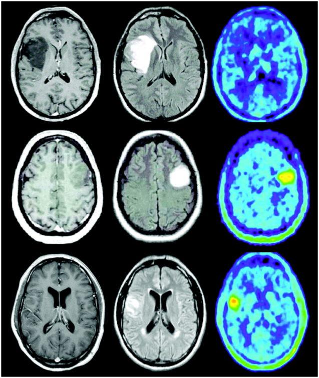 Tratamento completo para gliomas aumentou o tempo de vida