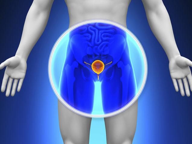 Câncer de próstata: tratamento