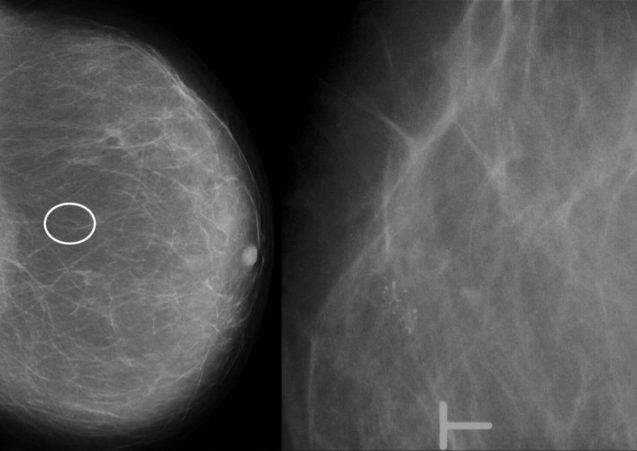 Hiperplasia ductal atípica e câncer de mama
