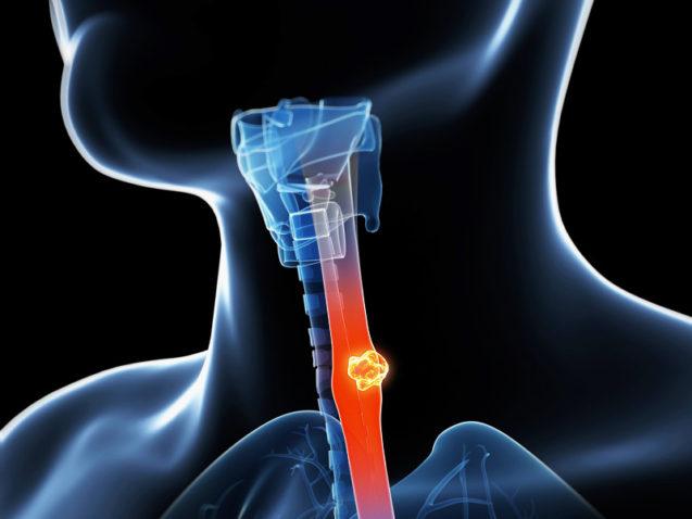 Visão geral do câncer de esôfago