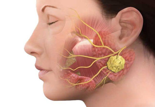 Diagnóstico e tratamento precoce são as principais armas contra o câncer de glândula salivar